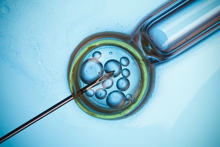 IVF procedure in Singapore