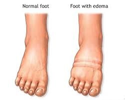 swollen foot during pregnancy