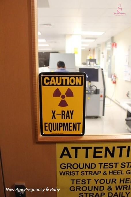 xray is harmful to fetus