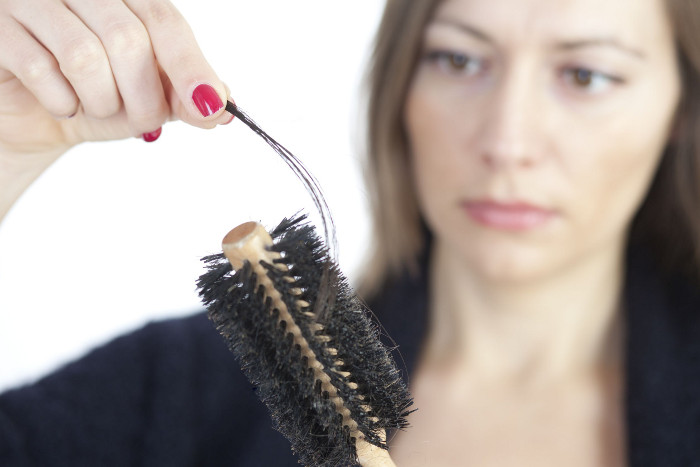 hair loss in pregnany women